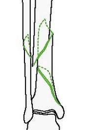 Клиновидный перелом голени: спиральный клин