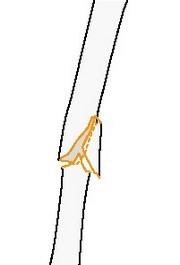 Клиновидный перелом плечевой кости с изгибающим клином