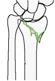 Неполный внутрисуставной сагиттальный перелом лучевой кости