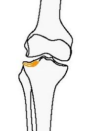 Неполный внутрисуставной вдавленный перелом большеберцовой или малоберцовой костей