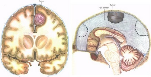 Парасагиттальная менингиома