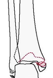 Подсиндесмозный перелом голени с переломом заднемедиального края лодыжки