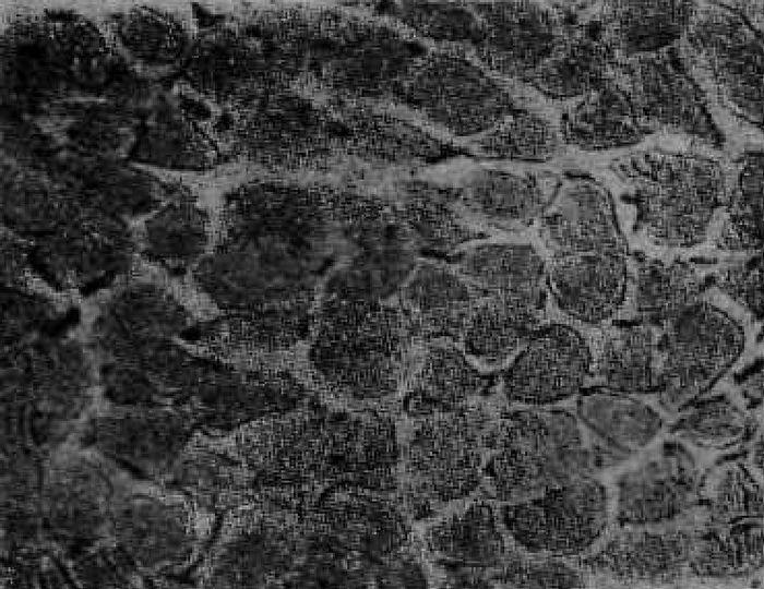 Поперечное сечение инъецированной мышцы языка кошки (X268)