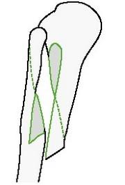 Простой спиральный перелом плечевой кости