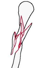 Сложный неправильный перелом плечевой кости