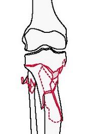 Внесуставной перелом голени: метафизарный многооскольчатый