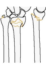 Внесуставной перелом локтевой кости (простой и вколоченный)