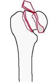 Внутрисуставной перелом головки бедренной кости с переломом шейки