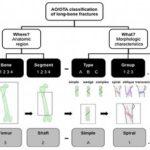 Классификация переломов трубчатых костей AO (Мюллера)