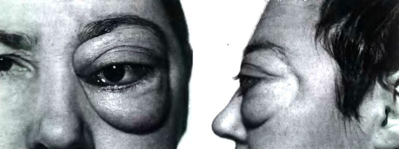 Фото больного краниоорбитальной менингиомой: экзофтальм свыше 12 мм