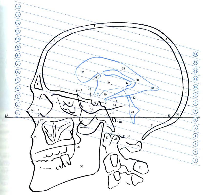 КТ-срезы при мультиспиральной компьютерной томографии головного мозга
