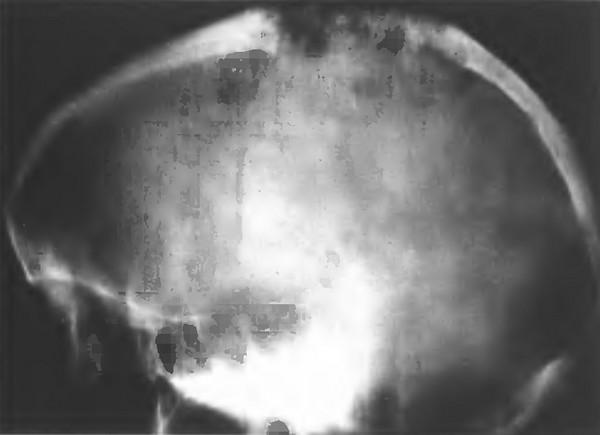 Менингиома верхнего сагиттального синуса на краниограмме