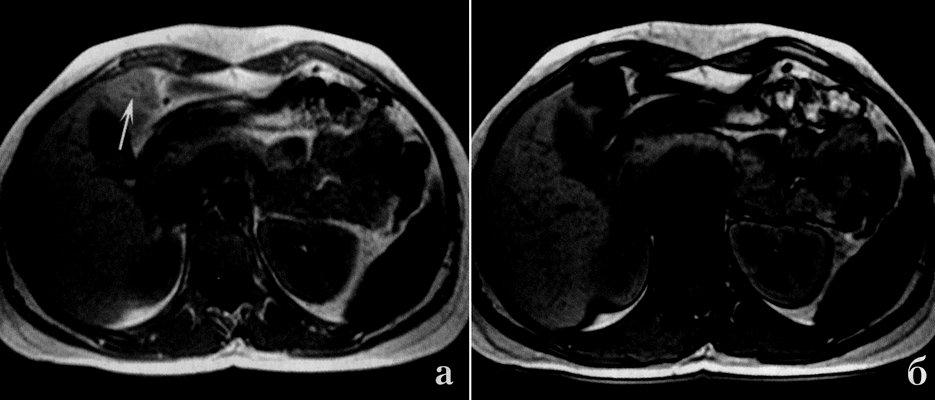 Очаговая жировая дистрофия печени (фото МРТ)