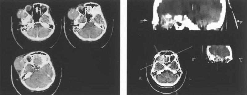 Узловое распространение менингиом клиновидной кости