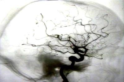Ангиографические признаки кровоснабжающих менингиому сосудов