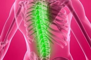 Остеохондропатия тела позвонка: болезнь Кальве и Шейермана-Мау