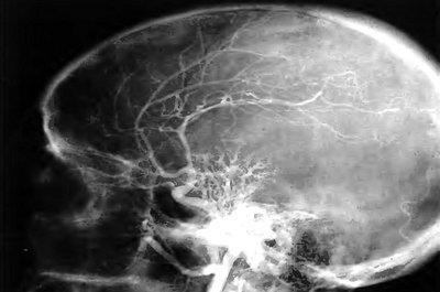 Краниоорбитальные менингиомы
