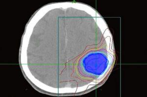 Множественные интракраниальные менингиомы