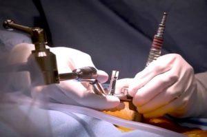 Хирургическое лечение менингиом намета мозжечка