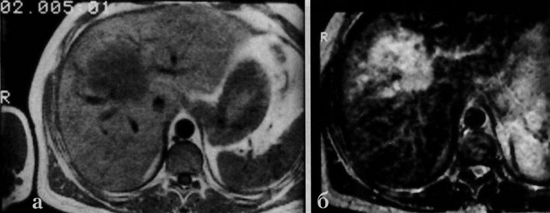 МРТ закрытой травмы печени
