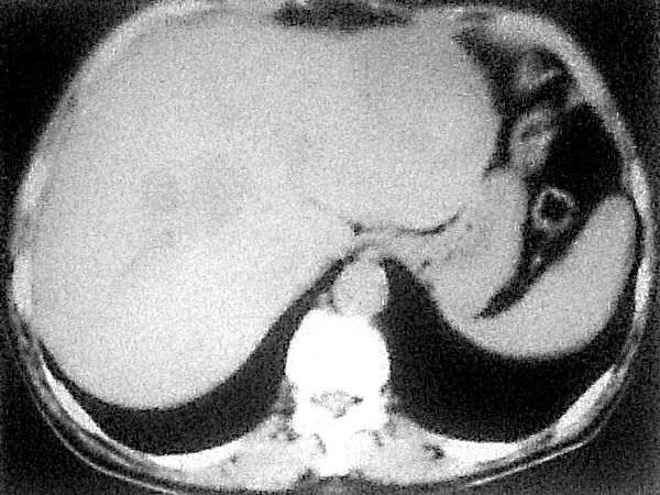 Подкапсулярная гематома, подострая стадия печени