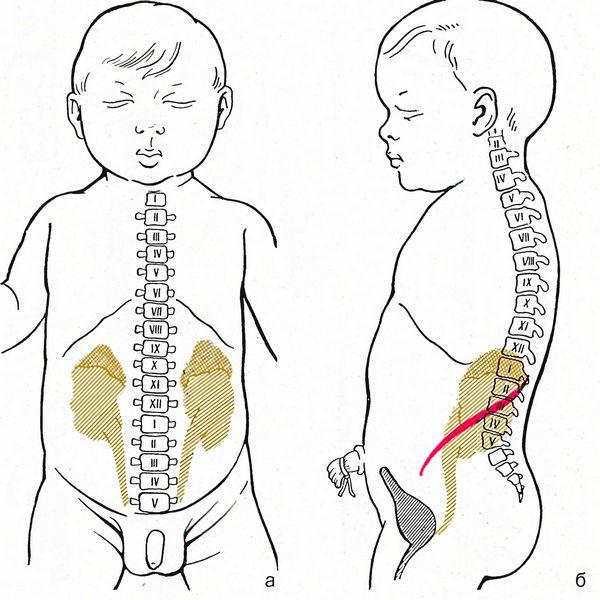 Синтопия почек у новорожденных
