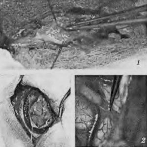 Трансплантация фрагментов эмбриональной нервной ткани