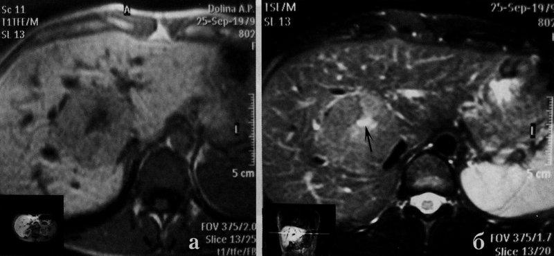 Узловая гиперплазия печени на МРТ