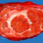 Узловая гиперплазия печени