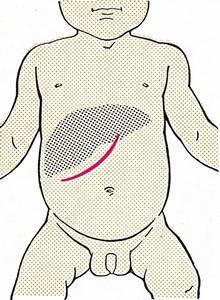 Разрез Федорова при операции на печени