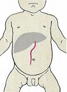 Разрез Кера при операции на печени