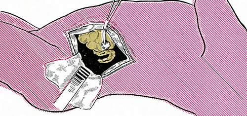 Операция на надпочечнике (фото 1)