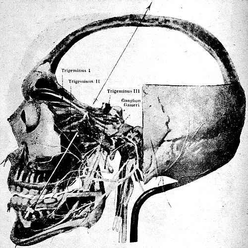Блокада второй ветви тройничного нерва в fossa pterygopalatina