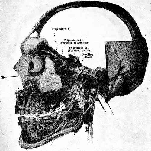 Орбитальная блокада n. maxillaris в foramen rotundum