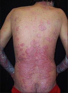 Псориаз при ВИЧ (фото)