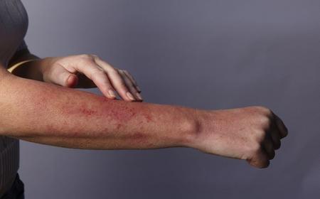 Себорейный дерматит при ВИЧ (фото)