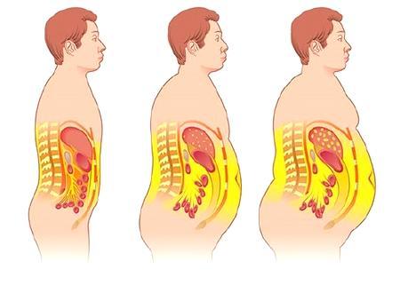 Висцеральное ожирение и его последствия