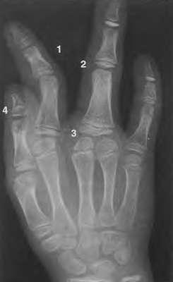 Аномалии костей кисти (фото кисти)