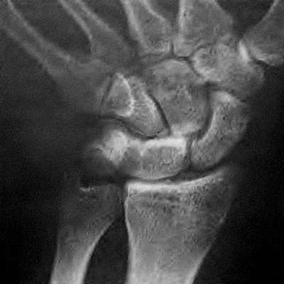 Аномалия сращения полулунной и трехгранной костей