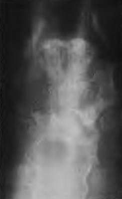 Поражение грудины при неходжкинской лимфоме (фото)