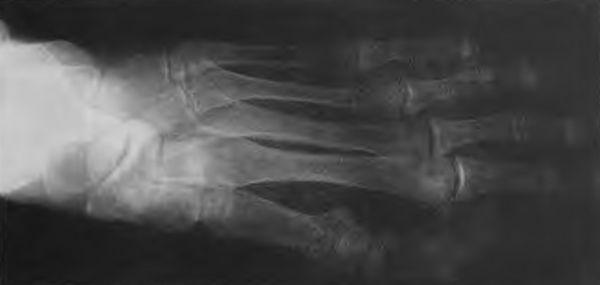 Ушно-небно-пальцевой синдром на стопе (фото рентгенограммы)