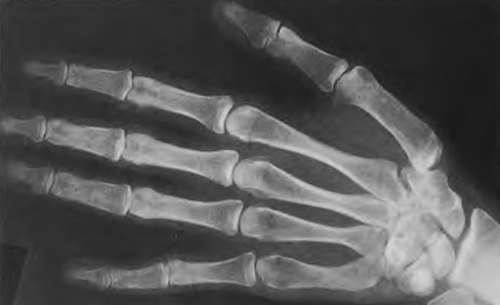 Ушно-небно-пальцевой синдром на кисти (фото рентгенограммы)