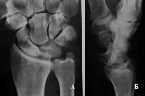 Вывих полулунной кости (рентген)
