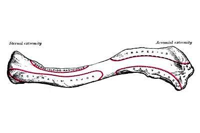 Аномалии и патология ключицы (рентгенология)