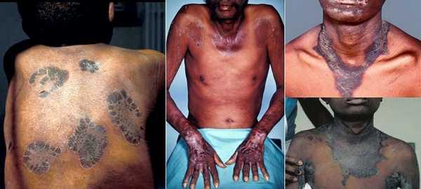 Пеллагра: фото кожных проявлений