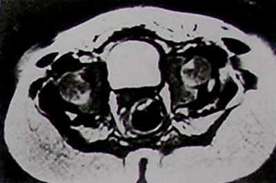 МРТ спустя 3 месяца после открытого вправления