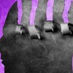 Парафрения (парафренный синдром)