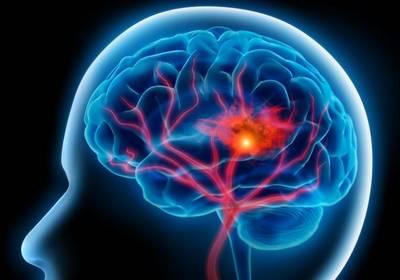 Мозговой кровоток при инсульте