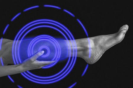 Тромбоз вен нижних конечностей после инсульта