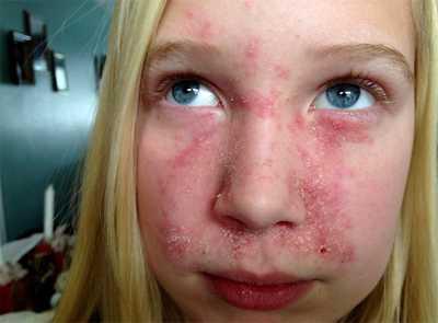 Поражение кожи при недостатке биотина